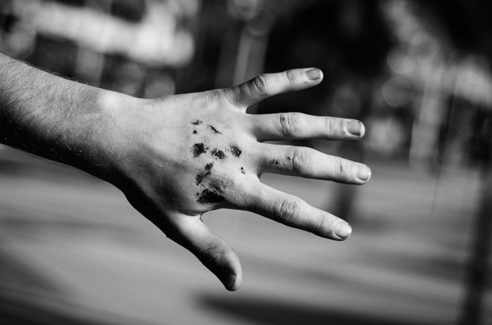 Adam Woolf injured hand photographed by Marcus Maschwitz