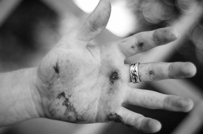 Adam Woolf injury photographed by Marcus Maschwitz